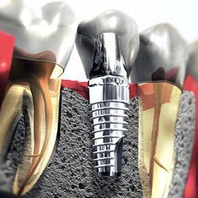 Zobni implantati nam ponujajo izjemno rešitev pri izgubi zob